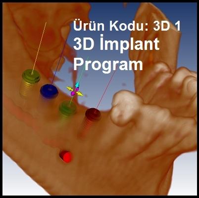 3D İmplant Proğramı ( Fiyat öğrenmek için lütfen üyelik girişi yapınız )